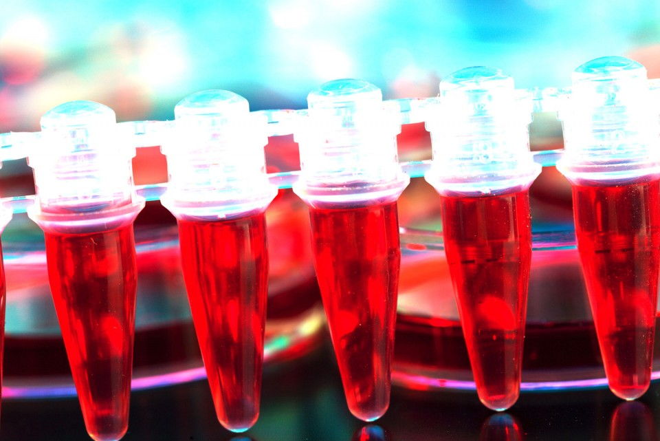 hematology-samples-for-analysis